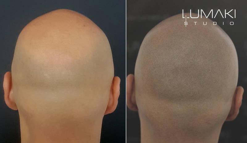 Mikropigmentacja skóry głowy krok po kroku