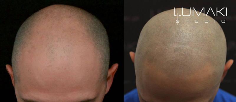 Opinie o mikropigmentacji skóry głowy