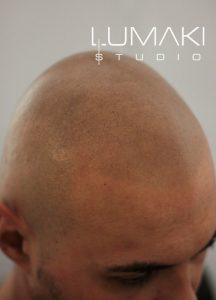 Skóra po zabiegu mikropigmentacji skóry głowy