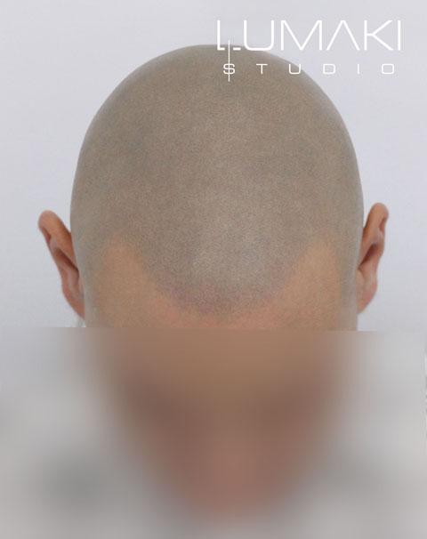mikropigmentacja