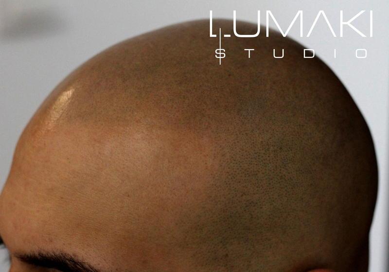 Łysienie plackowate a mikropigmentacja skóry głowy