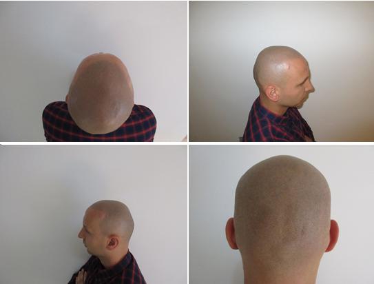 micro scalp